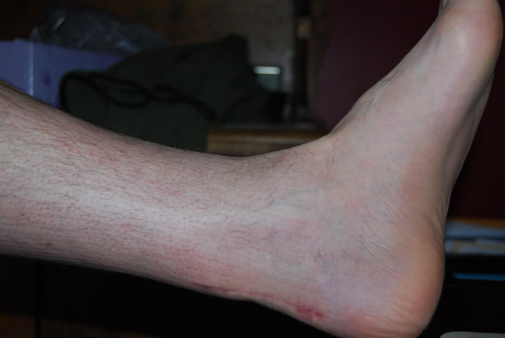 Leg at 4 Weeks
