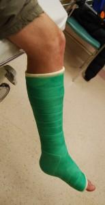 Green cast