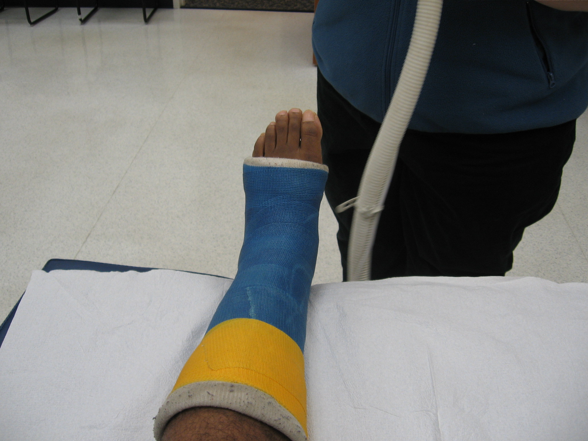 My Achilles Story » Cast Removal!!!!!!!!!!!!!!!!!!!!!!!!!