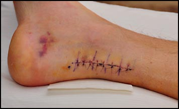 The sutures -- 10 days after surgery