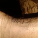 achilles_scar