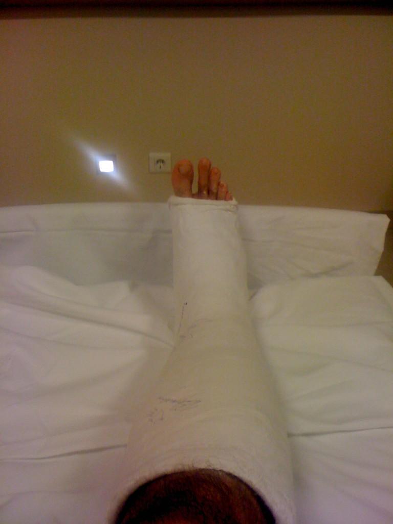 2 days after surgery/rupture