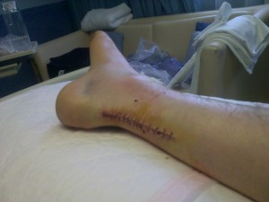 24-hours post-op, you can see the swelling around the wound and cankle