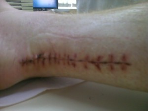 Stitches removed after 2 weeks, looks NASTY!