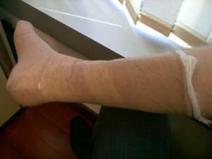 Svelte new fibreglass cast going down the back of the leg