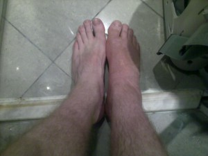 6 weeks in a cast - I'm a long way off being a foot model.