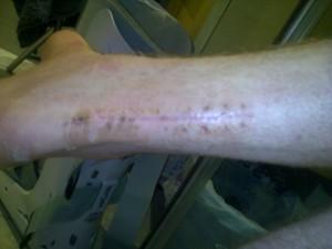 Scar at 6 weeks