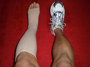 compression-socks1